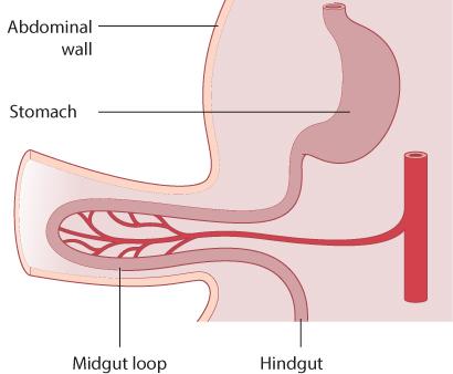 Figure 3.3 Midgut herniation.