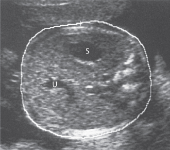 Figure 4.7 Abdominal circumference measurement demonstrating the correct section showing the stomach (S) and the umbilical vein (U).