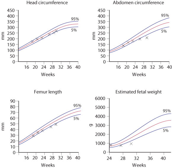 Figure 4.8 Ultrasound plots on reference range for head circumference (HC), abdominal circumference (AC) and estimated fetal weight in a case of early-onset fetal growth restriction (FGR). Note that HC remains above 5th centile while the AC falls below 5th centile. This is a case of asymmetric FGR with head sparing.