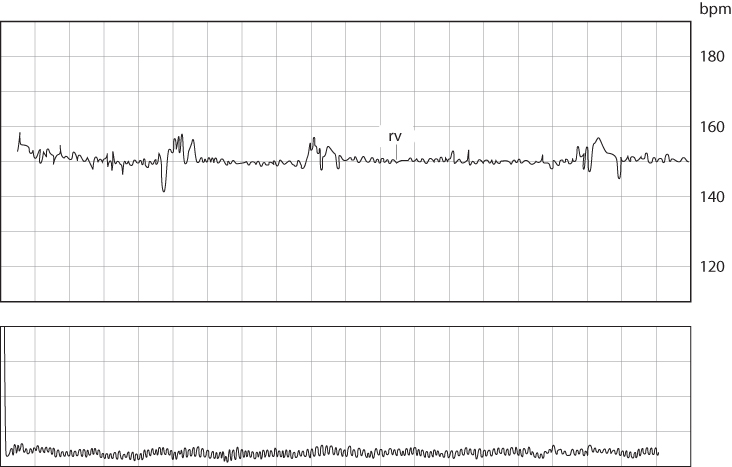Figure 4.10 A fetal cardiotocograph showing a baseline of 150 bpm but with reduced variability (rv).