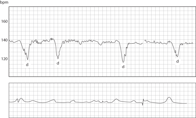 Figure 4.11 An admission cardiotocograph from a term pregnancy. Although the baseline fetal heart rate is normal, there is reduced variability, an absence of fetal heart rate accelerations and multiple decelerations (d). The decelerations were occurring after uterine tightening and are therefore termed 'late'.
