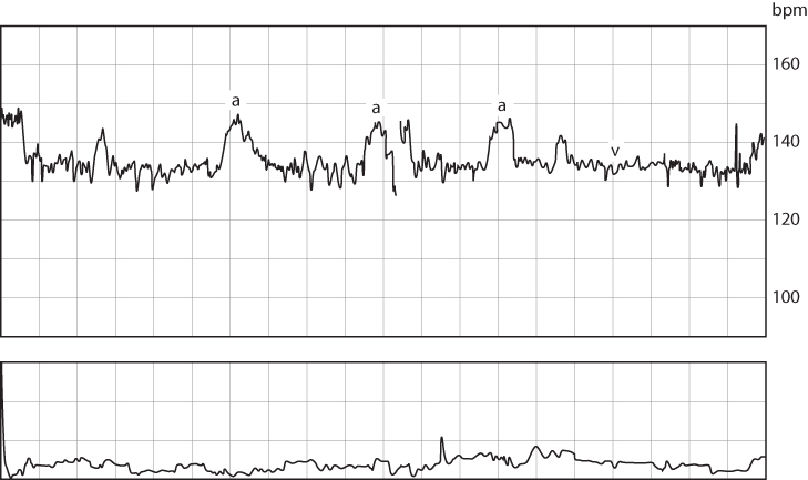 Figure 4.12 A normal fetal cardiotocograph showing a normal rate, normal variability (v) and the presence of several accelerations (a).