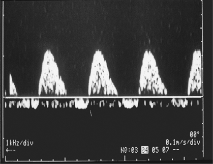 Figure 4.15 Reverse end-diastolic flow in the umbilical artery.