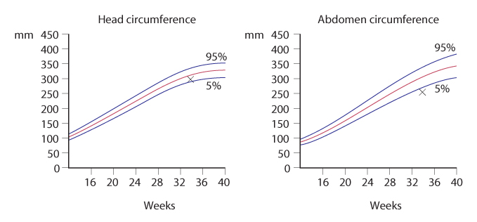 Figure 4.21 Plot of fetal head circumference and fetal abdominal circumference.
