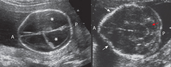 Figure 5.5 is in a similar plane in Ms N, whose fetus has a neural tube defect. Note the scalloped head shape anteriorly (lemon shaped) marked by the white arrows and the banana-shaped cerebellum (red arrow). A, anterior; P,posterior.