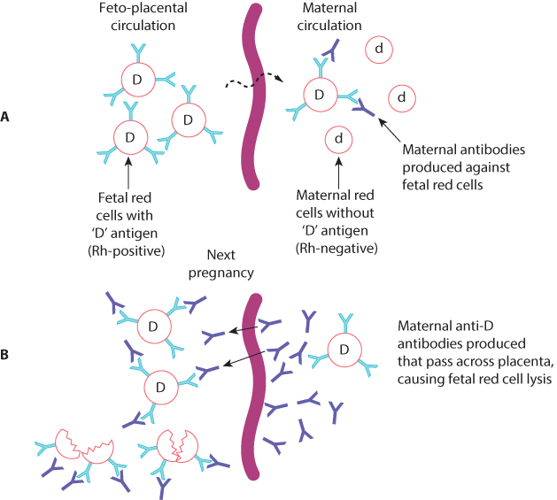 Figure 6.9 The mechanism of rhesus sensitization (A) and fetal red cell destruction (B).