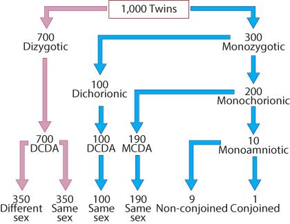 Figure 7.1 Incidence of monozygotic and dizygotic twin pregnancies. DCDA, dichorionic diamniotic; MCDA, monochorionic diamniotic.