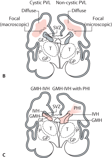 Figure 8.7 (A) Magnetic resonance imaging (MRI) in a preterm infant with a gestational age at birth of 32 weeks. Routine ultrasound performed at 2 weeks of age shows cystic changes in the distribution of the right middle cerebral artery. MRI, inversion recovery, axial slice, performed at 40 weeks postmenstrual age, shows an area of cavitation and ex-vacuo dilatation of the right ventricle. Also note the absence of myelination of the posterior limb of the right internal capsule. The infant developed a moderate hemiplegia and has a Developmental Quotient of 91 at 24 months of age. (B, C) Cystic and non-cystic periventricular leukomalacia (PVL) and germinal matrix haemorrhage–intraventricular haemorrhage (GMH-IVH) and GMH-IVH with periventricular haemorrhagic infarction (PHI). Coronal sections from the brain of a 28-week-old premature infant. GE:ganglionic eminence; GP: globus pallidus; P: putamen; SVZ: subventricular zone; T: thalamus.(From Volpe JJ [2009]. Brain injury in premature infants: a complex amalgam of destructive and developmental disturbances. Lancet Neurol 8:110–24.)
