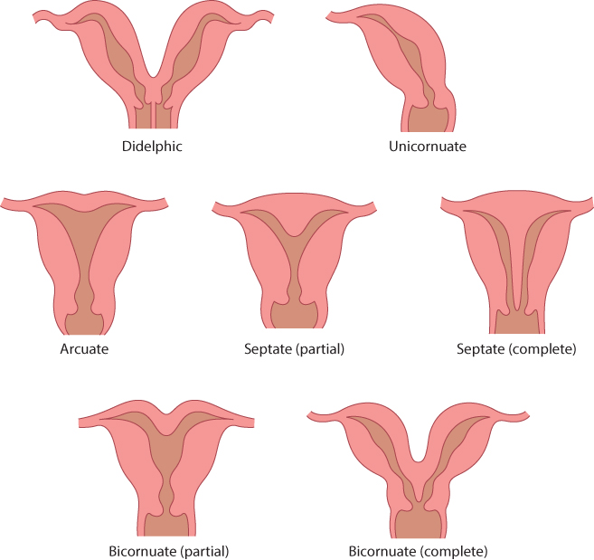 Figure 8.9 Schematic diagram of different types of congenital uterine anomalies. Uterine müllerian anomalies are associated with an increased risk of preterm delivery.