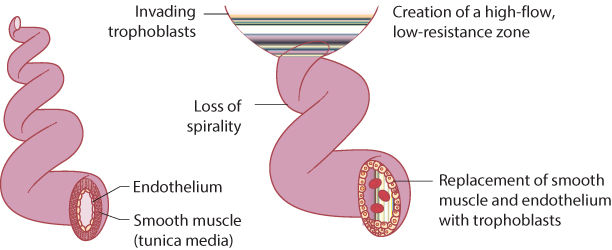 Figure 9.1 Physiological change of spiral arteries by invading trophoblasts.