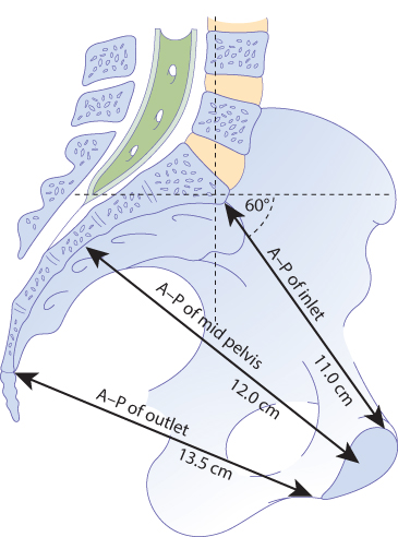 Figure 12.3 Sagittal section of the pelvis demonstrating the anterior–posterior (A–P) diameters of the inlet and outlet.