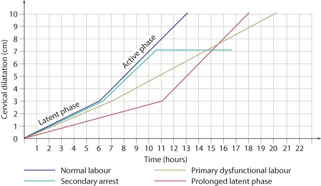 Figure 12.22 Abnormalities of the partogram