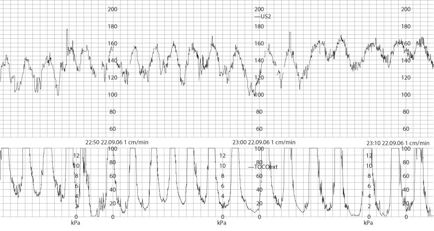 Figure 12.23 A pathological cardiotocograph (CTG) secondary to uterine hyperstimulation.