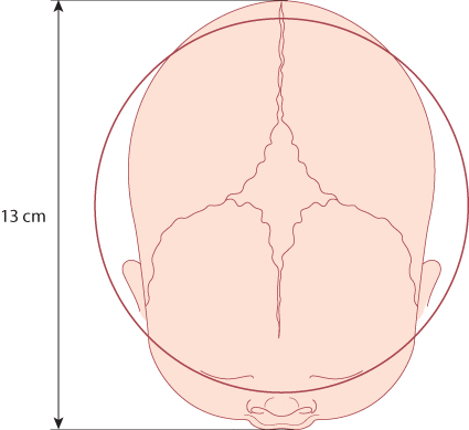 Figure 12.28 Vaginal examination with brow presentation. The circle represents the pelvic cavity, with a diameter of 12 cm. The mento-vertical diameter of 13 cm is too large to permit engagement of the head.