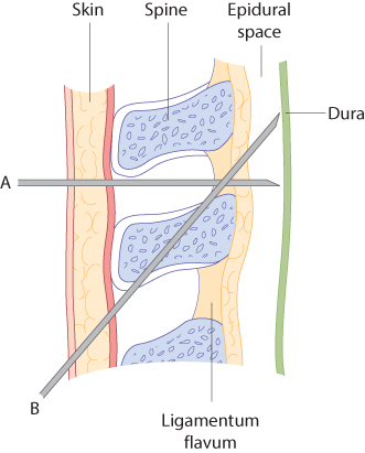 Figure 12.31 Needle positioning for an epidural anaesthetic. Midline (A) and paramedian (B) approaches.
