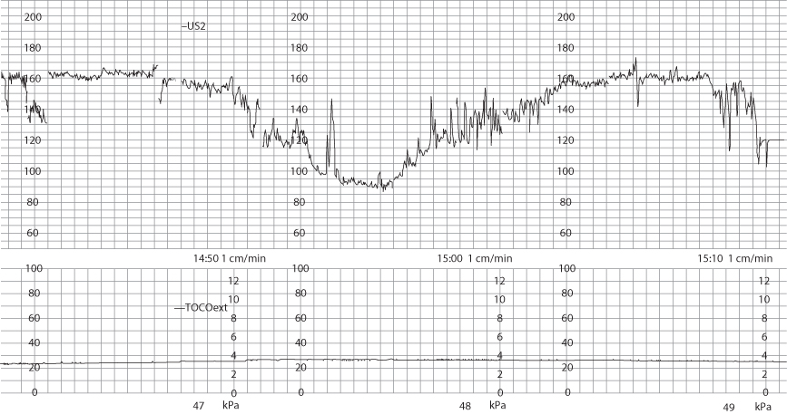 Figure 12.32 Fetal bradycardia to a heart rate of 90 bpm, lasting approximately 11 minutes.
