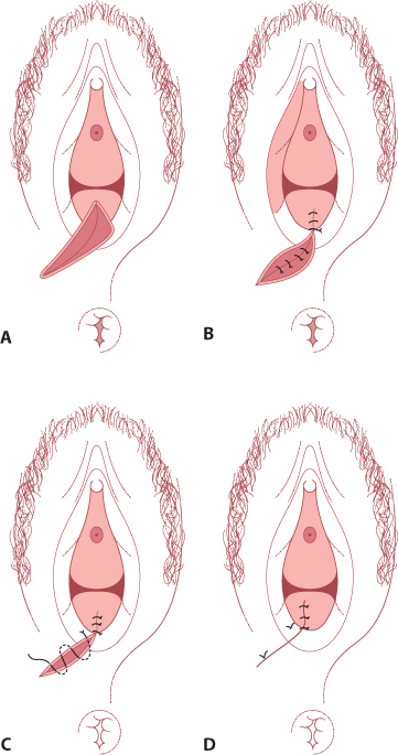 Figure 13.1 Repair of an episiotomy/second-degree perineal tear. (A) The perineum prior to the repair; (B)continuous repair of the vaginal mucosa; (C) subcutaneous suture of the skin; (D) completed repair.