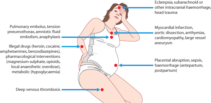 Figure 14.3 The differential diagnosis of acute maternal collapse.