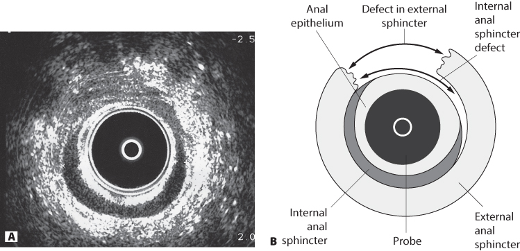 Figure 15.2 (A) Transanal ultrasound showing the anal mucosa and anterior disruption of the internal anal sphincter (darkband) following a third-degree tear at delivery; (B) diagrammatic representation of part A.