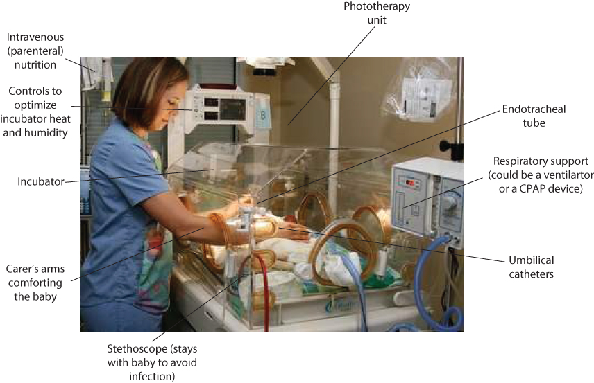 Figure 16.1 Components of neonatal care. CPAP, continuous positive airways pressure.