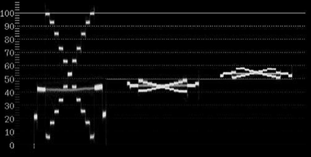 Figure_5.5.28
