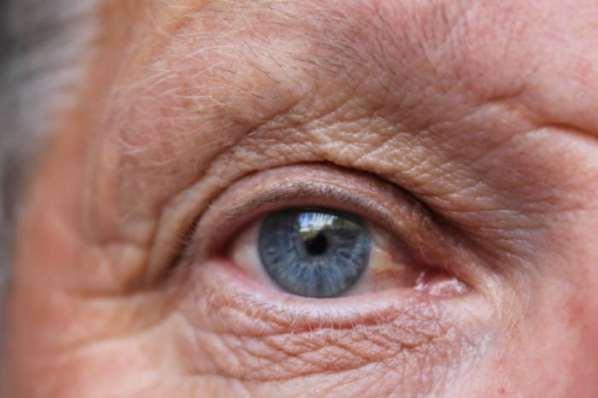 La couleur des yeux pour prédire l'alcoolisme ?