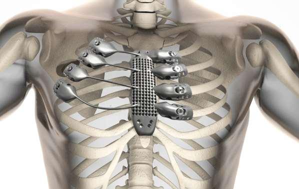 Un patient reçoit une cage thoracique et un sternum en titane imprimés en 3D