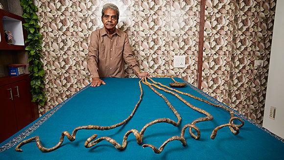 Cet homme a des ongles de 9 mètres qu'il n'a pas coupés depuis 60 ans