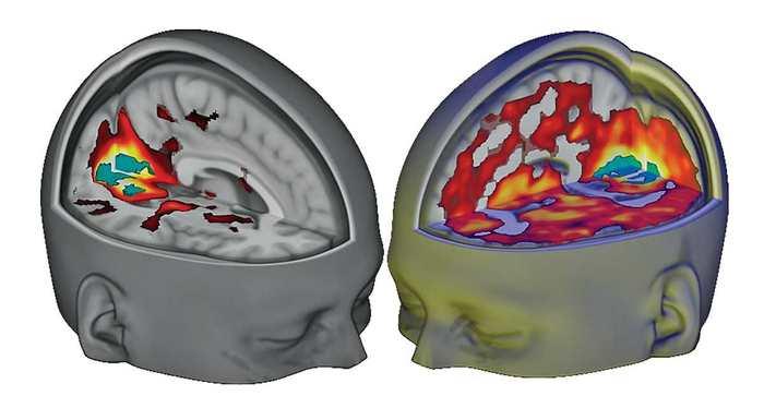Première imagerie d'un cerveau sous LSD