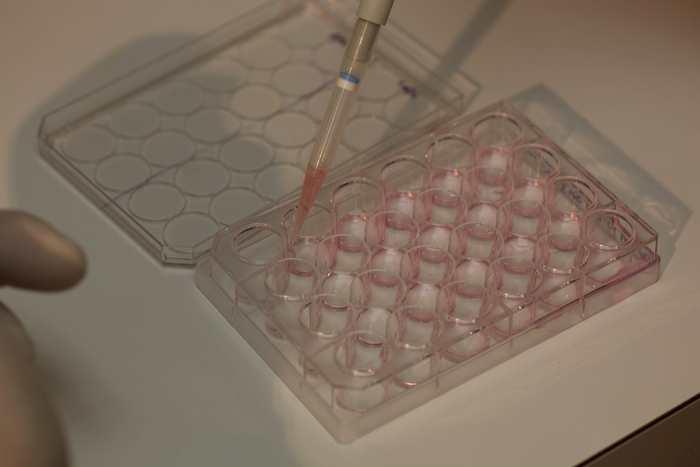 Les Etats-Unis, par l'intermédiaire du NIH, vont financer les recherches sur les chimères génétiques sous certaines conditions.