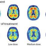 Un médicament expérimental, l'Aducanumab, a pu supprimer les plaques dans les cerveaux de quelques personnes qui souffraient de la maladie d'Alzheimer pendant une période de 12 mois.