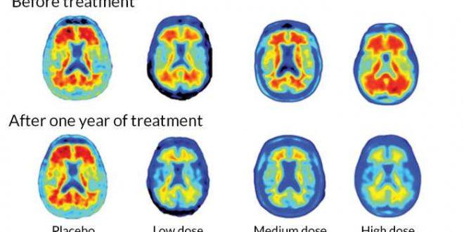 Des signes très encourageants sur un médicament contre l'Alzheimer