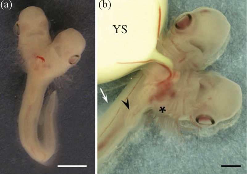 Au cours d'une expédition, des chercheurs ont découvert un embryon de requin siamois. En gros, c'est un requin avec 2 têtes.