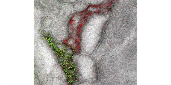 Des images en couleur pour la microscopie électronique