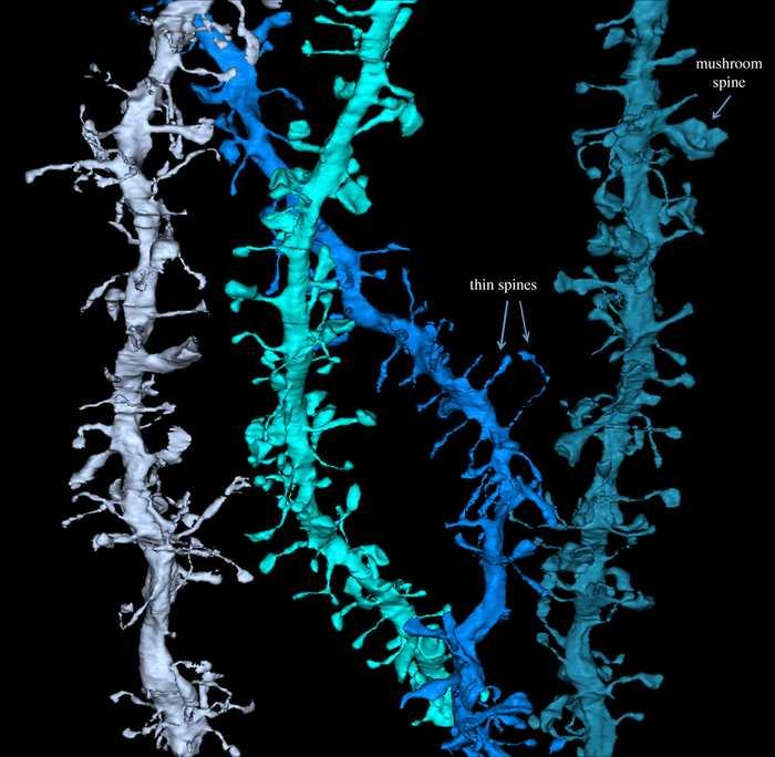 La recalibrage chimique des cellules du cerveau pendant le cerveau est crucial pour l'apprentissage et les somnifères pourraient saboter ce processus.