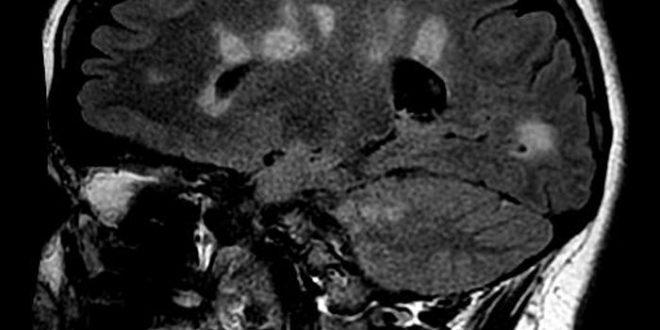 La «thérapie de libération» est inefficace contre la sclérose en plaques