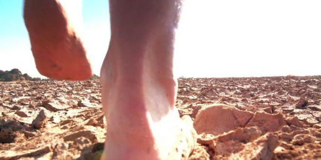 Une épidémie d'Éléphantiasis en Ouganda associé au fait de marcher pieds nus sur un sol volcanique