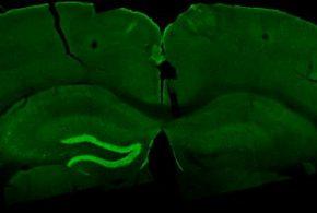 Une stimulation TI stimule une zone dans l'hippocampe d'une souris (la couleur vert clair) via le marquage par C-Fos - Crédit : Nir Grossman, Ph.D., Suhasa B. Kodandaramaiah, Ph.D., and Andrii Rudenko, Ph.D.