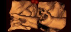Les foetus reconnaissent des formes similaires au visage dans l'utérus