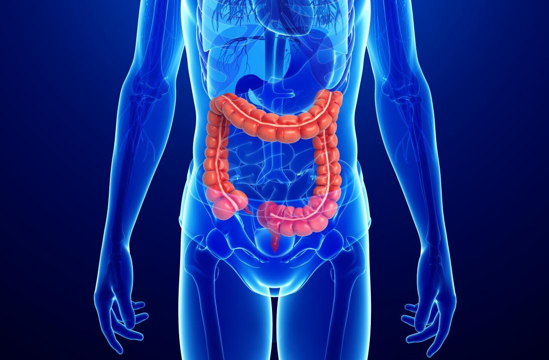 la maladie de crohn par rapport la colite ulc reuse quelle est la diff rence. Black Bedroom Furniture Sets. Home Design Ideas