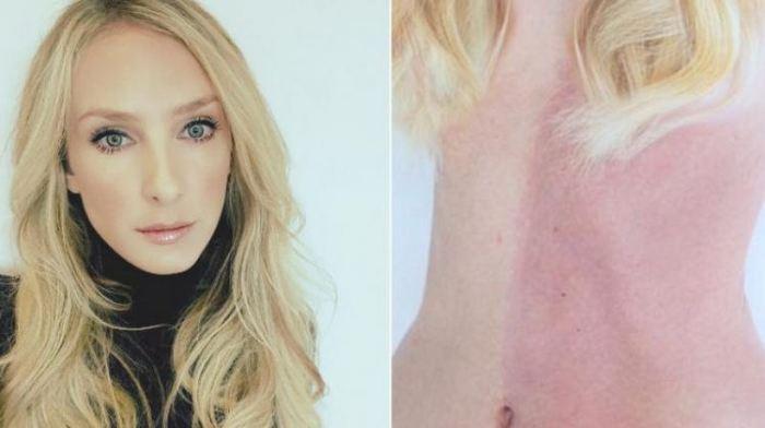 Taylor Muhl est une femme qui souffre d'une maladie rare connue comme le chimérisme génétique. Pour résumer, elle a absorbé sa soeur jumelle dans son corps.