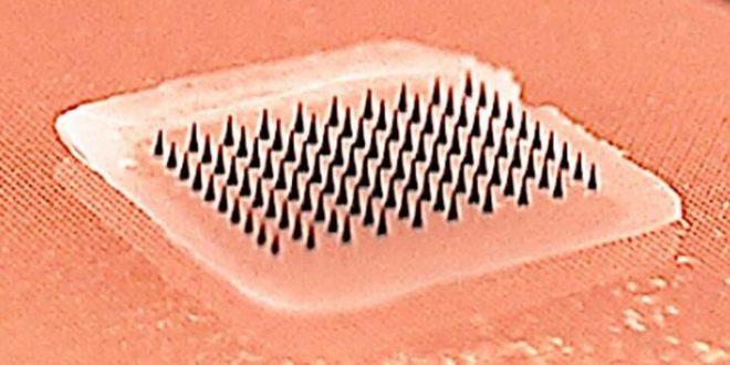 Vaccin contre la grippe : Le patch de micro-aiguilles passe l'essai clinique de phase I