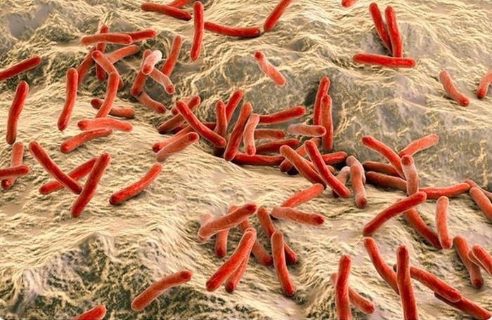 Une étude décrit le fonctionnement de la lèpre et comment cette maladie détourne le système immunitaire. C'est impressionnant et on voit le même processus que dans la sclérose en plaques.