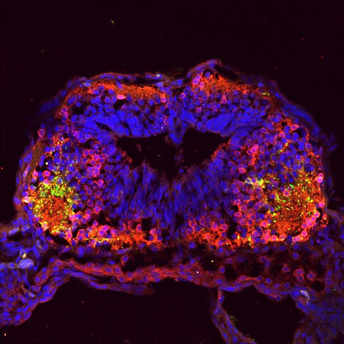 Une image confocale du cerveau d'un têtard révèle des neurones dopaminergique (en vert) qui ont augmenté dans une reconnaissance parentale typique et les neurones GABAergique (en rouge) ont augmenté dans une parenté sociale étendue - Crédit : UC San Diego
