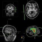 """Dans un essai contrôlé, les chercheurs rapportent l'identification d'une zone du cerveau associé au symptôme """"d'entendre des voix"""" dans la schizophrénie ainsi qu'un possible traitement en utilisant la stimulation magnétique transcrânienne. Mais le chemin est long avant qu'on puisse déterminer si c'est le meilleur traitement pour réduire ce symptôme."""