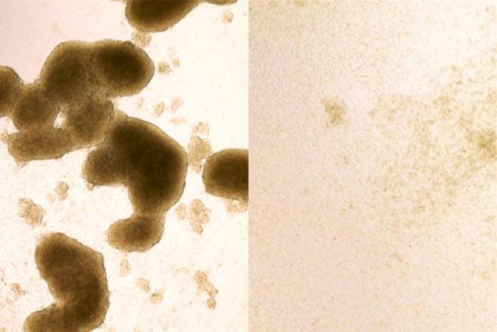 Les cellules souches du cancer du cerveau (sur la gauche) sont tué par une infection du virus Zika (l'image à droite montre les cellules après le traitement par Zika) - Crédit : Zhe Zhu