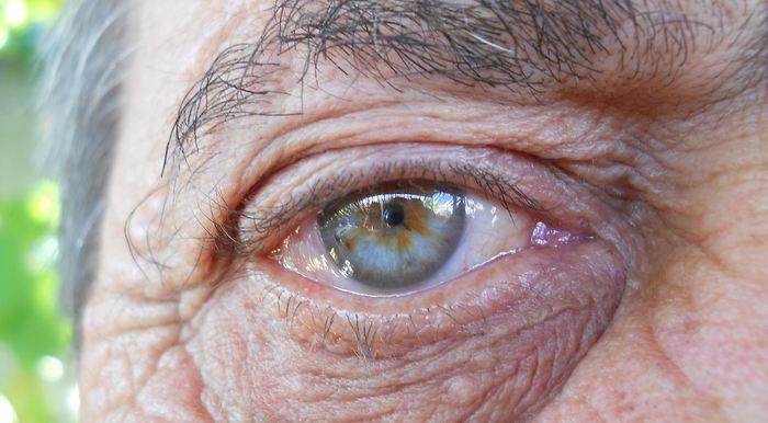 Dans une étude qui a analysé un échantillon considérable de génomes dans la population américaine et britannique, les chercheurs rapportent que la sélection naturelle de l'évolution est constamment à l'oeuvre même dans des périodes courtes afin de réduire les traits associés à la maladie d'Alzheimer et au tabagisme important entre autres.
