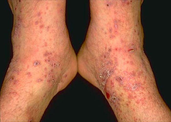 Le genre de symptomes que vous pouvez avoir avec l'hépatite B. Pas joli hein ? Alors, faites vacciner vos enfants ! - Crédit : perridermatology.com