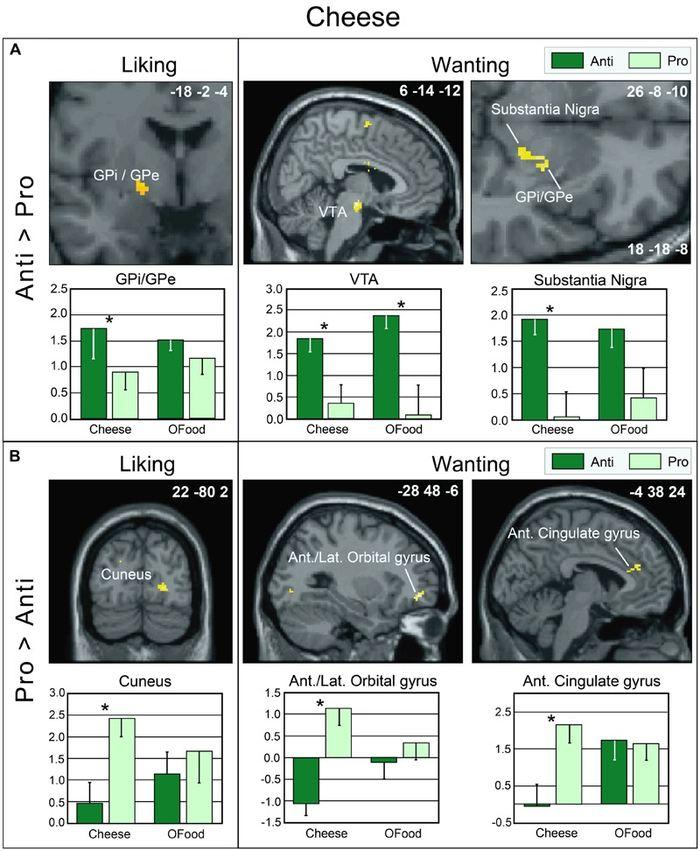 Le Prix Ig Nobel 2017 de médecine pour les analyses cérébrales sur les personnes dégoutées du fromage