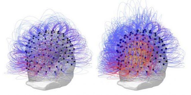 Une stimulation nerveuse améliore un état végétatif datant de plusieurs années